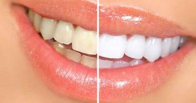 Receita Caseira para Clareamento de Dentes